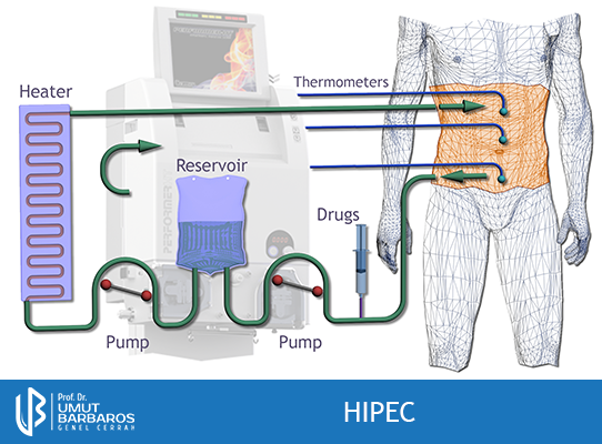 HIPEC nedir