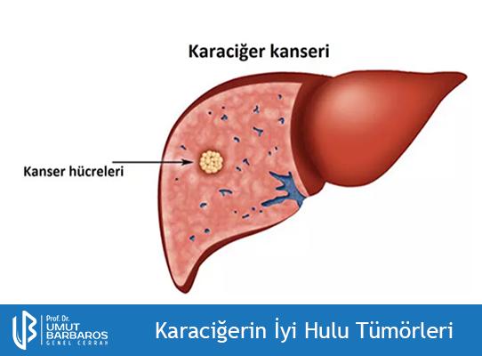 Karaciğerin İyi Huylu Tümörleri
