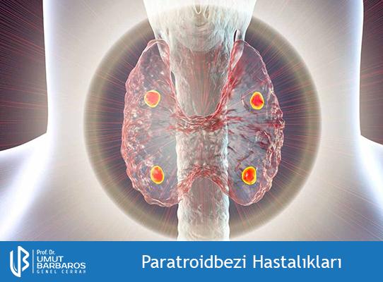 Paratroidbezi Hastalıkları